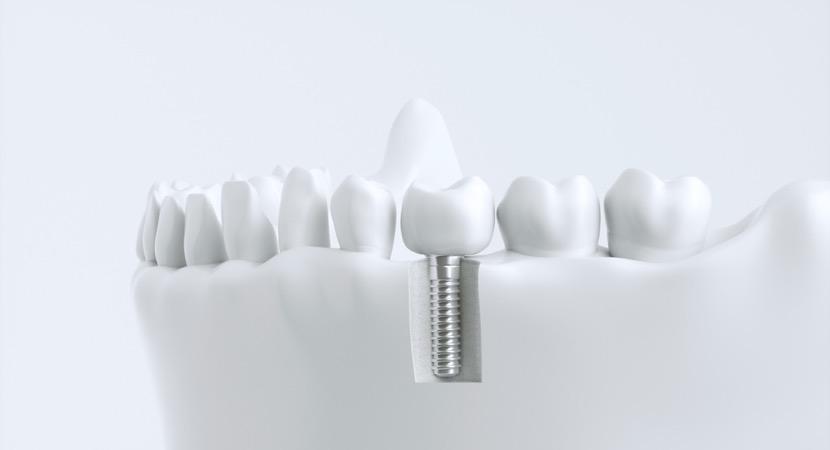 Zahnersatz aus Vaihingen.