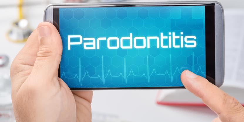 zahnarzt vaihingen enz selbsttest zu parodontitis. Black Bedroom Furniture Sets. Home Design Ideas
